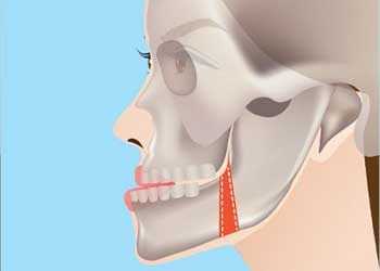 cosmetic-jaw-surgery