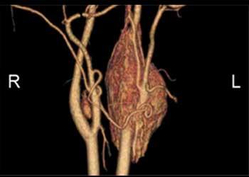 Neck tumours