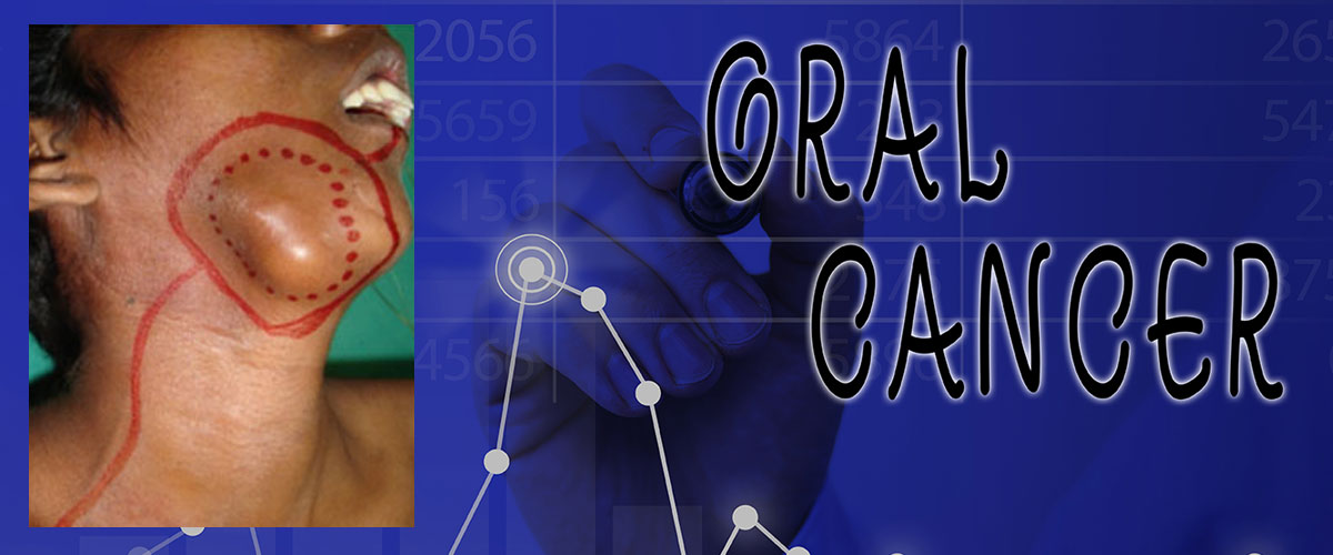 Oral Cancer Surgeries and Reconstruction