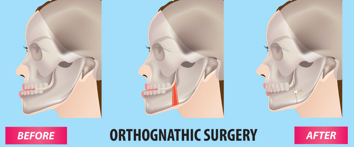 Orthognathic Surgeries (Cosmetic Jaw Surgery)