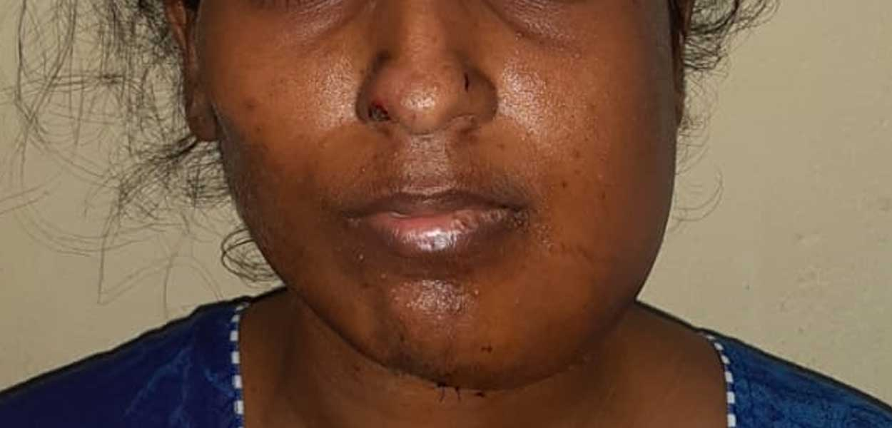 benign cystic tumour