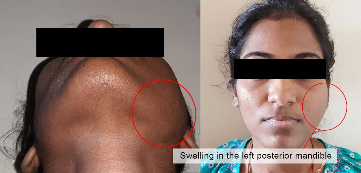 A Case of Benign Cystic Tumour