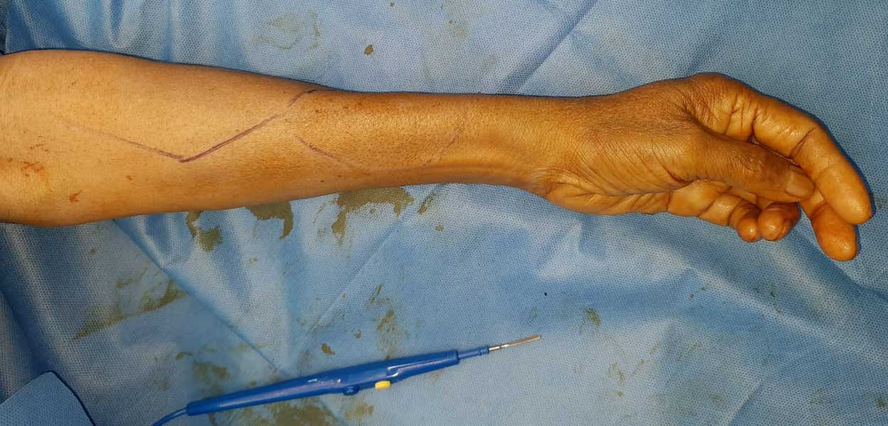 Radial Forearm free flap Reconstruction