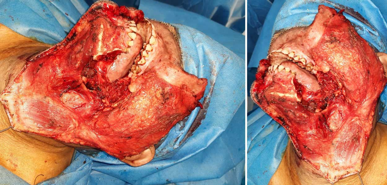 Selective Neck Dissection (SND)