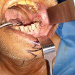 Carcinoma of Retromolar Trigone