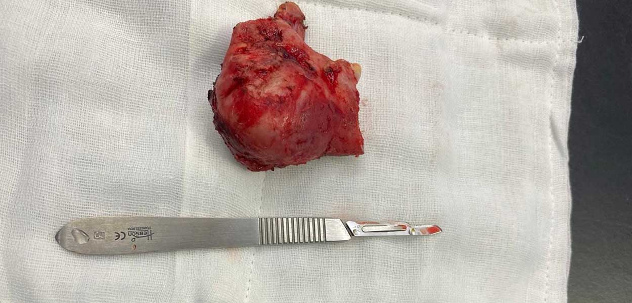 removal of the tumour