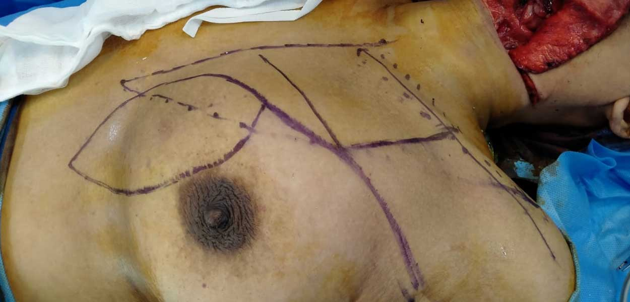 Pectoralis Major Myocutaneous Flap Reconstruction
