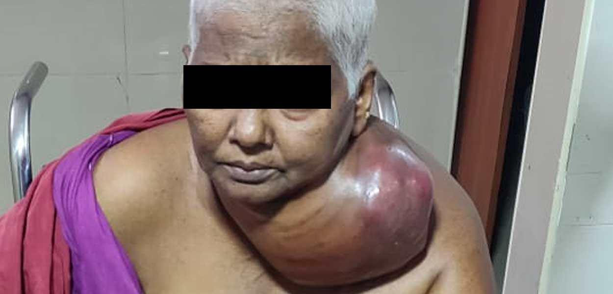 Metastatic Ovarian Cancer Presenting as Neck Tumour